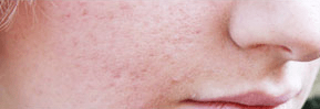 acne scar before
