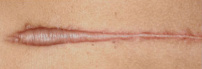 hypertrophic scar before