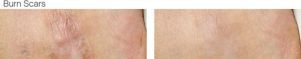 Lighten Burn Scars