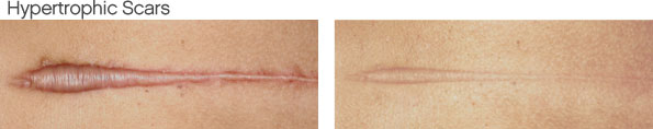 Hypertrophic Scar Removal